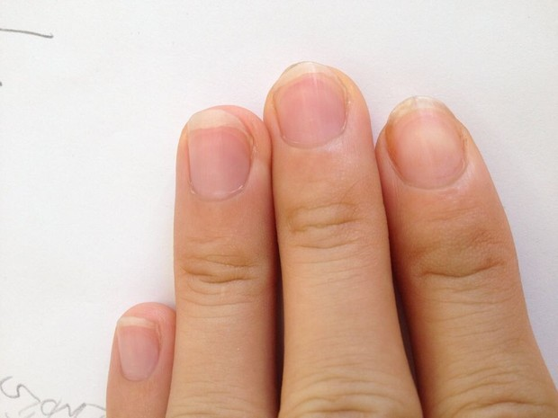 手指甲中食指发黄,觉得经常很不干净请问是不是肝炎呢