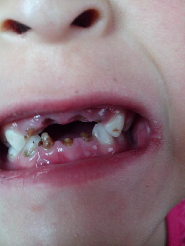 儿童牙根 怎么办