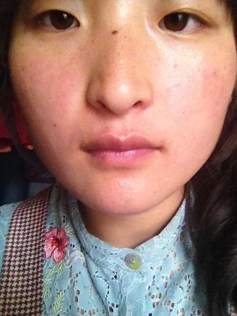 脸上长痘痘是什么原因