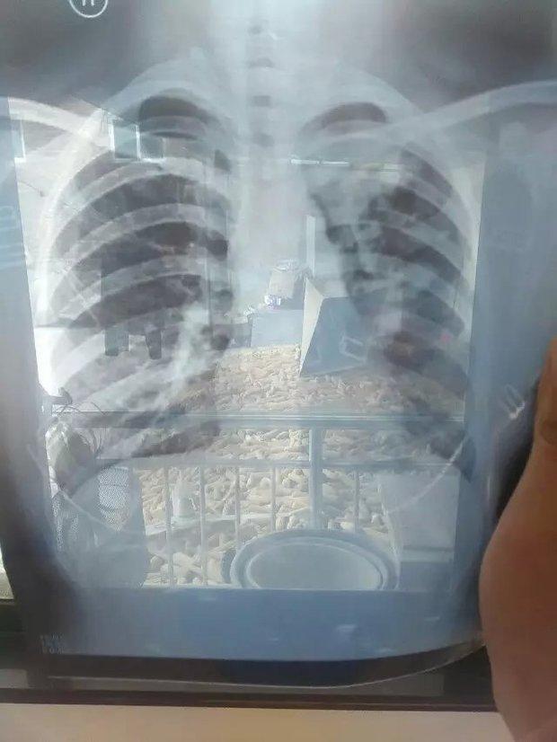 左肺上野及左肺内旁可见斑片状密度增高影余肺野纹理