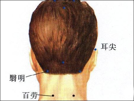 耳前瘘管解剖结构图