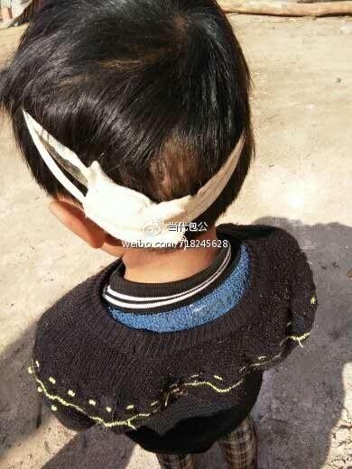 【转】北京时间       曲靖一年级女孩遭老师打破头 家长被校方威胁 - 妙康居士 - 妙康居士~晴樵雪读的博客