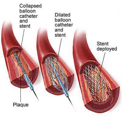 心脏结构的平面图
