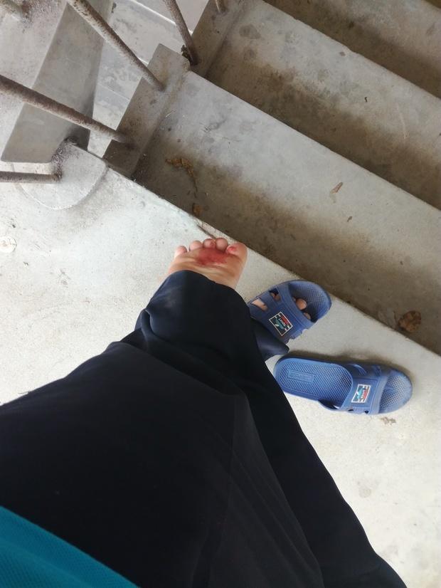 被生锈铁钉扎到脚必须去注射破伤风疫苗吗?不