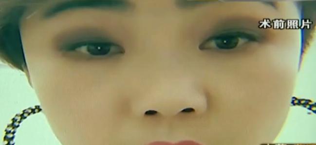 女子做鼻子整形,结果鼻小柱消失了,整容院:还会长回来的