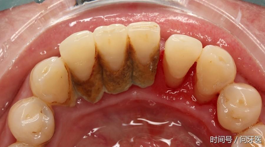 【转载】牙缝很臭怎么办?老牙医支招! - 荷花绿叶 - 荷花绿叶的博客