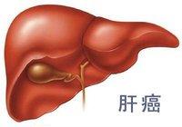 肝癌介入治疗